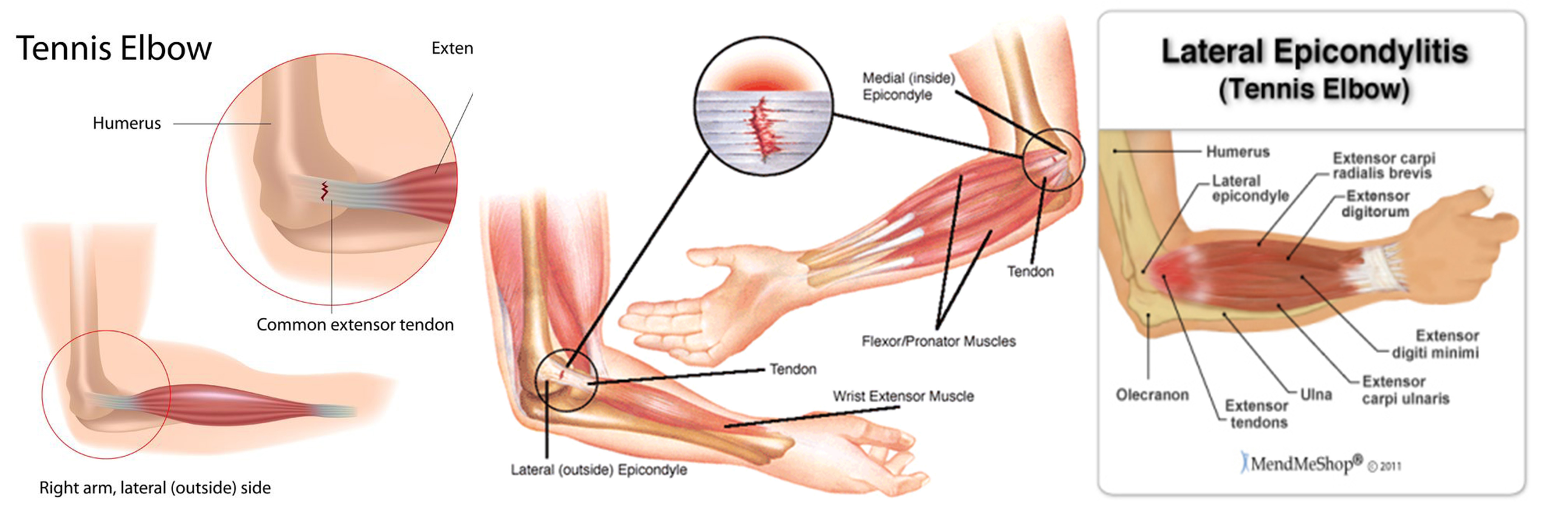 Elbow Pain | Singapore Orthopaedic Centre